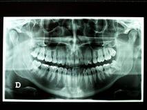 Radiografía imágenes de archivo libres de regalías