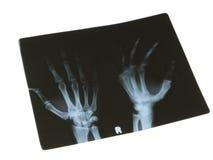 Radiografía Imagen de archivo libre de regalías