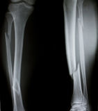 Radiografía de ambas piernas humanas (piernas quebradas) Imagen de archivo libre de regalías