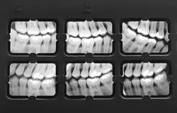 Radiografía de dientes Foto de archivo libre de regalías