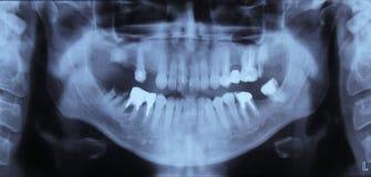 Radiografía de dientes Fotos de archivo
