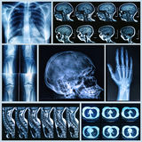 Radiografía de huesos humanos Foto de archivo