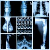 Radiografía de huesos humanos Imagen de archivo libre de regalías