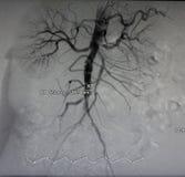 Radiografía de la aorta, recipientes abdominales Imagenes de archivo