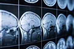 Radiografía de la cabeza y del cerebro de una persona imágenes de archivo libres de regalías