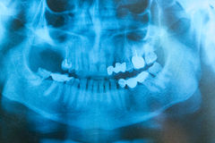 Radiografía de la cara de un paciente Imagen de archivo