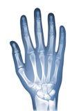 Radiografía de la mano Fotografía de archivo