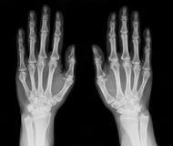 Radiografía de la mano Foto de archivo