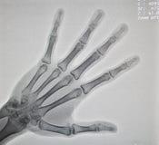 Radiografía de la mano imagenes de archivo