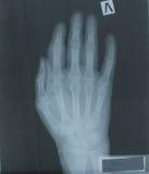 Radiografía de la mano del paciente Fotografía de archivo libre de regalías