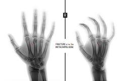 Radiografía de la mano Fractura del 3ro hueso metacarpiano el niño marker Negativo imágenes de archivo libres de regalías