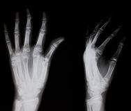 Radiografía de la mano humana Fotos de archivo