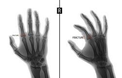 Radiografía de la mano Muestra la fractura de la base del falange próximo del segundo finger de la mano derecha marker Negativo Foto de archivo libre de regalías