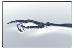 Radiografía de la mano y del antebrazo humanos Foto de archivo