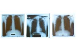 Radiografía de la película Imagenes de archivo