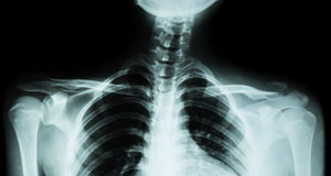 Radiografía de la película amba clavícula AP (vista delantera): muestre a fractura la clavícula izquierda distal foto de archivo