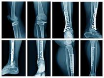 Radiografía de la pierna de la colección fotografía de archivo libre de regalías