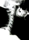 Radiografía de la pista y del cuello Imagenes de archivo