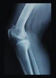 Radiografía de la rodilla fotografía de archivo