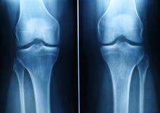 Radiografía de la rodilla Imágenes de archivo libres de regalías