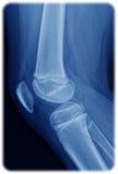 Radiografía de la rodilla Foto de archivo