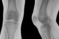 Radiografía de la rodilla derecha. Imágenes de archivo libres de regalías