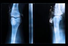 Radiografía de la rodilla después de la cirugía artroscópica Foto de archivo
