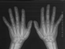 Radiografía de las manos Imagenes de archivo