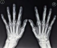 Radiografía de las manos Fotografía de archivo