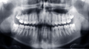 Radiografía de los dientes Foto de archivo