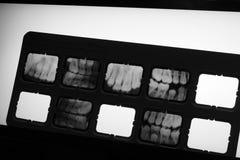 Radiografía de los dientes en Lightbox imagenes de archivo