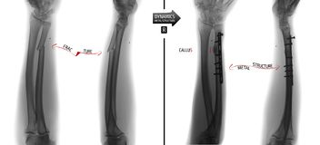 Radiografía de los huesos del antebrazo La fractura del cúbito con coloca de nuevo y fijación de la trabajo de metalistería Negat fotos de archivo libres de regalías