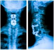Radiografía de Op. Sys. de los posts de la espina dorsal cervical fotos de archivo