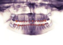 Radiografía de paréntesis ortodónticas Imagenes de archivo