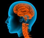 Radiografía de un esqueleto masculino con el cerebro Foto de archivo libre de regalías