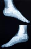 Radiografía de un tobillo humano Imagenes de archivo