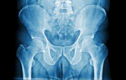 Radiografía del abdomen Imágenes de archivo libres de regalías