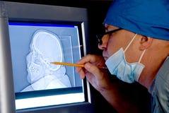 Radiografía del cráneo Foto de archivo