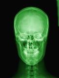 Radiografía del cráneo del extranjero. Foto de archivo libre de regalías
