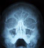 Radiografía del cráneo humano Imágenes de archivo libres de regalías