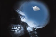 Radiografía del cráneo humano con el cielo Foto de archivo