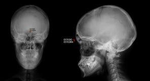 Radiografía del cráneo Osteoide-osteoma del sino frontal marker imagen de archivo libre de regalías