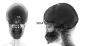 Radiografía del cráneo Osteoide-osteoma del sino frontal Negativo marker foto de archivo