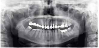 Radiografía del dentista Imágenes de archivo libres de regalías