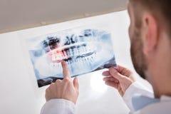 Radiografía del doctor Holding Teeth fotos de archivo