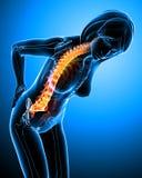 Radiografía del dolor de espalda femenino Imagen de archivo