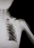 Radiografía del hombro humano (hombro roto) Foto de archivo