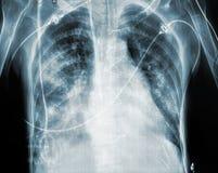 Radiografía del paciente después de la cirugía cardiaca Fotos de archivo libres de regalías