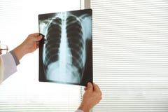 Radiografía del pecho foto de archivo