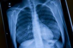 Radiografía del pecho Imagen de archivo